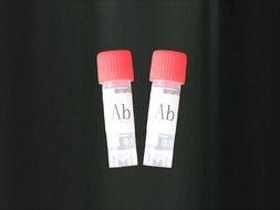 Anti-RAB23 产品图片