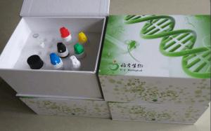 磷酸化KB抑制蛋白激酶β抗体phospho-IKKβ(Tyr199)免疫标记产品图片