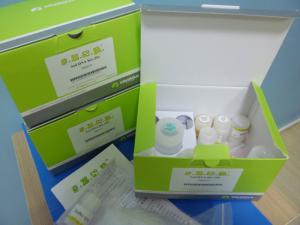 上海研尊生物兔基质金属蛋白酶4(MMP-4)ELISA检测试剂盒原理 产品图片