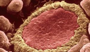 狗脏器组织淋巴细胞分离液试剂盒规格产品图片
