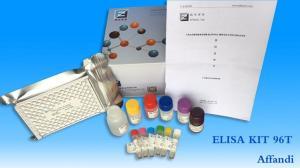 人解整合素样金属蛋白酶8(ADAM8)ELISA试剂盒 产品图片